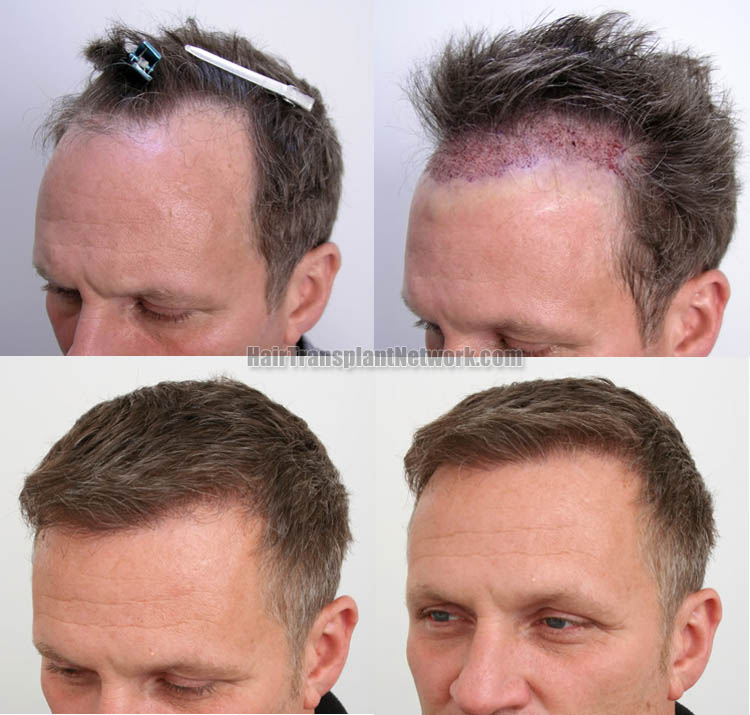 hair-transplant-surgery-photos-left-1579981